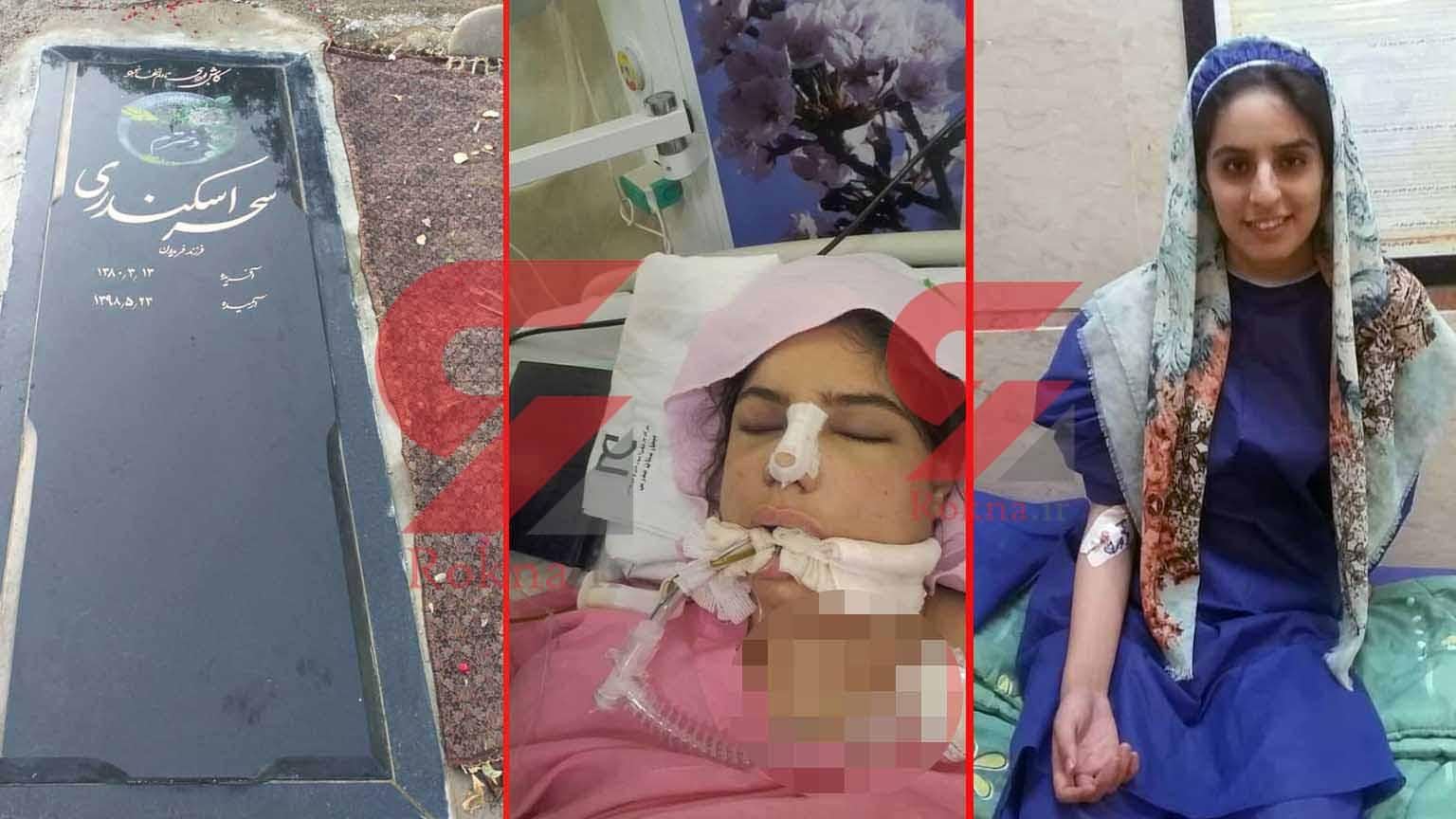 مرگ در اتاق عمل جراحی زیبایی بینی - اهدا عضو