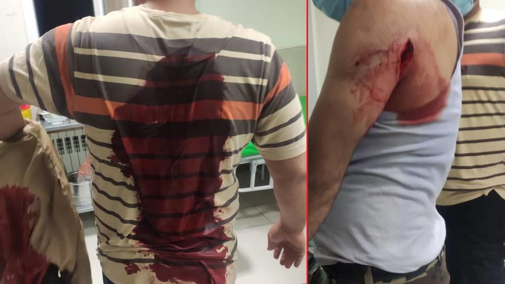 حمله به 2 جنگلبان در ساری