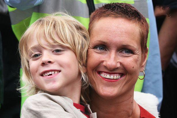 (تصاویر) داستان تلخ زن هنرمندی که پسرش را با دندان بزرگ کرد