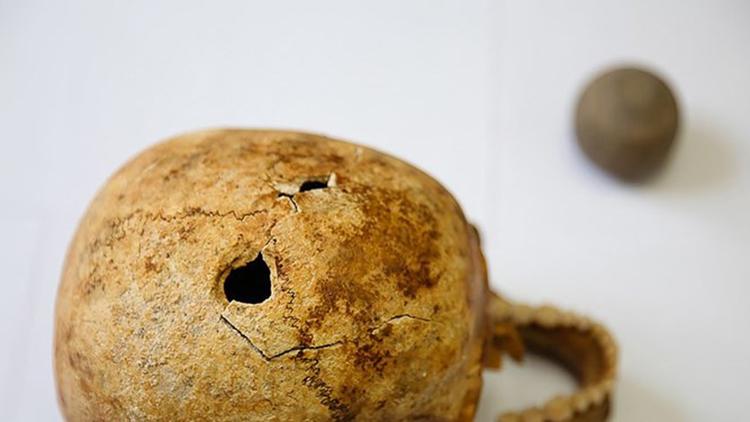 کشف سوراخ در جمجمههای باستانی +تصاویر