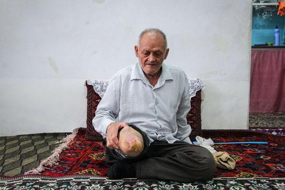 گزارشی تکاندهنده از شهرک جذامیهای مشهد