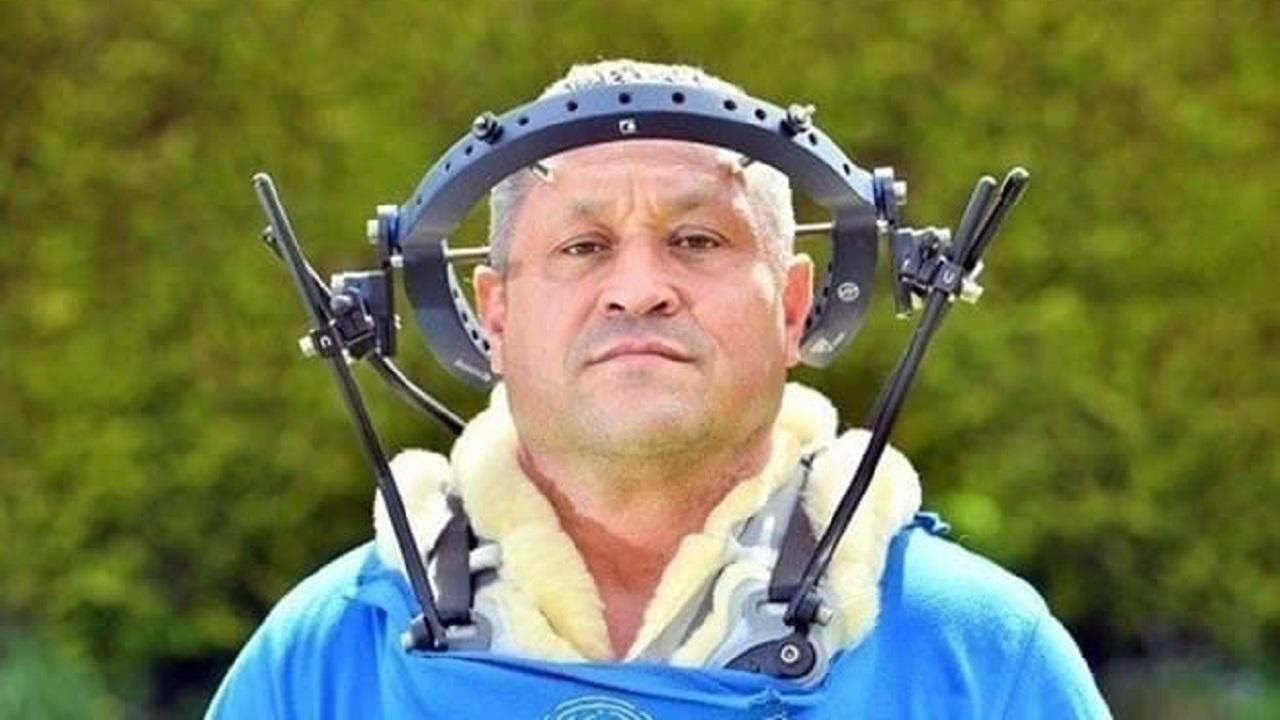 مرد انگلیسی با حلقه فلزی در جمجمه