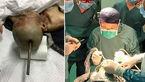 زنده ماندن مردی که میلگرد در جمجمه اش فرو رفت! +عکس های باورنکردنی