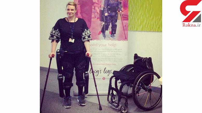 زن از 2 پا معلول به راحتی راه رفت! + عکس