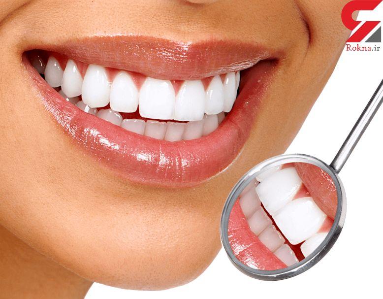 فوت و فن خانگی ببرای دندان های مرواریدی