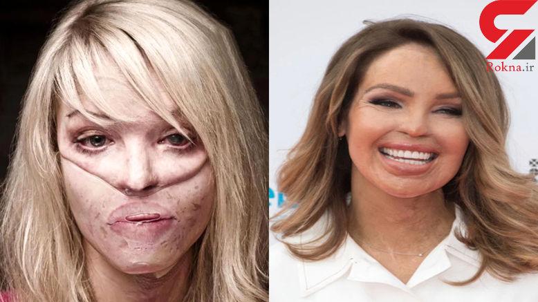 عکس های قبل و بعد  خانم مدل سرشناس اینستاگرام دراسیدپاشی! +عکس / امریکا