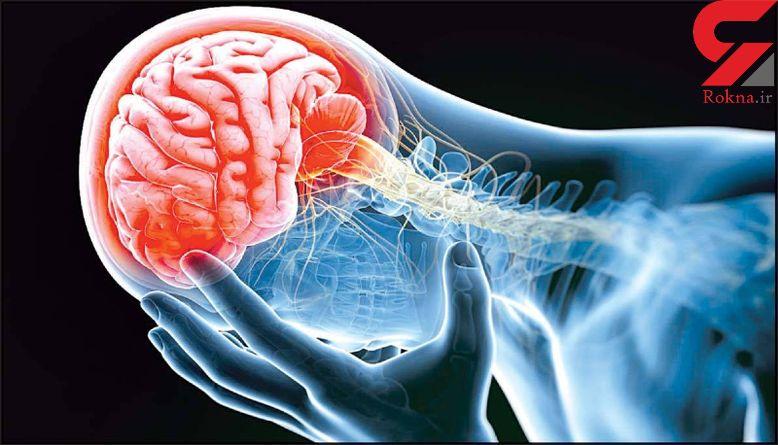 نسخه ای برای مبارزه با سکته مغزی