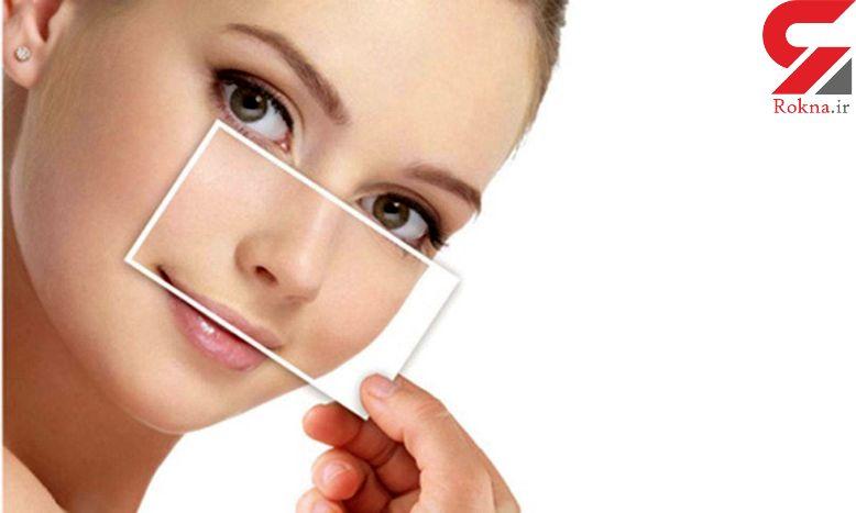 درمان سینوزیت با شستشوی روزانه بینی