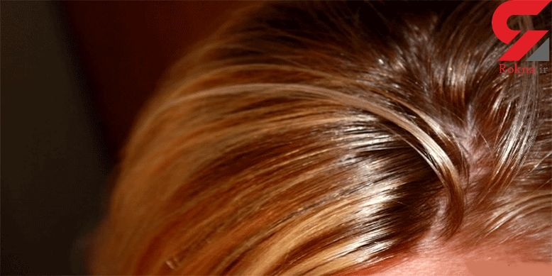 توصیه های مراقبتی از موهای چرب