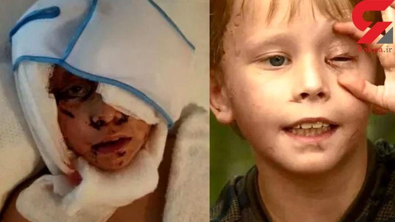 عکس از تیکه پاره شدن یک پسربچه در حمله حیوان درنده ! + جزییات