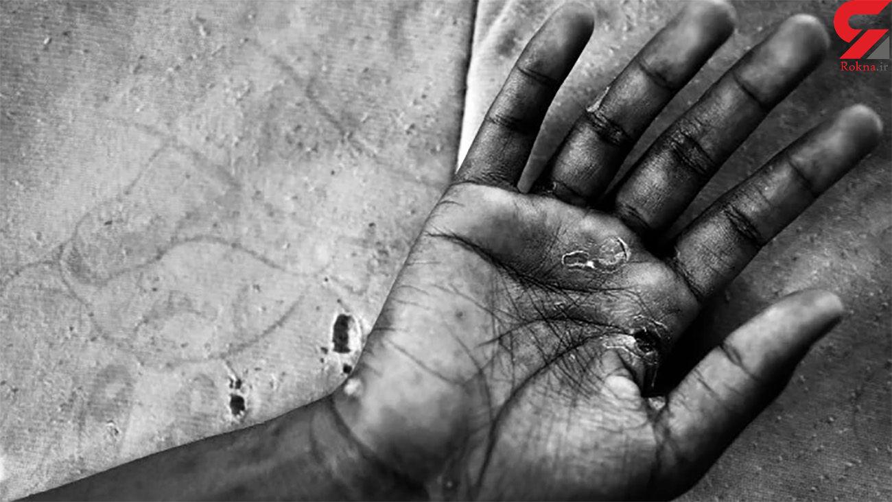آزار شیطانی دختر 17 ساله توسط ناپدری اش !+ عکس
