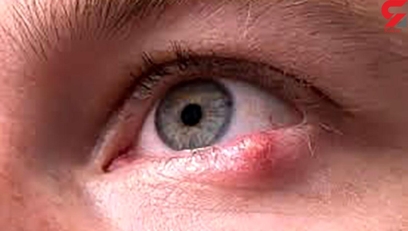علائم و درمان تبخال چشم چیست؟