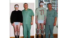 فیلم جالب از نحوهی عمل جراحی افزایش قد! + عکس