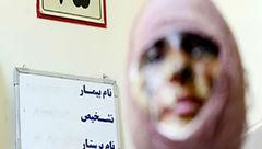 راز وحشتناک الهه در زندان زنان شهر ری! + عکس صورت دختر قبل و بعداز فاجعه