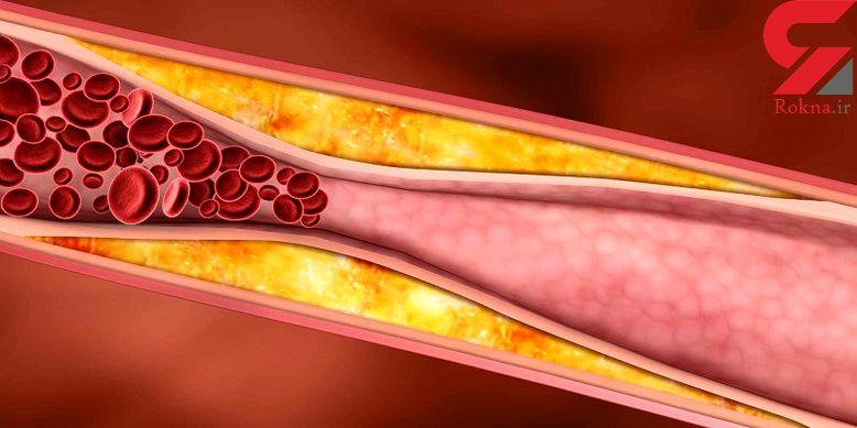 کاهش کلسترول خون با خاص ترین ترفندها
