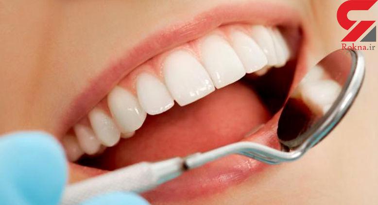 با جرم گیری دندان ها از شر میکروب ها خلاص شوید