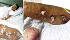 ترزیق وحشتناک ژل به بدن دختر زبیا، او را به دردسر انداخت + عکس