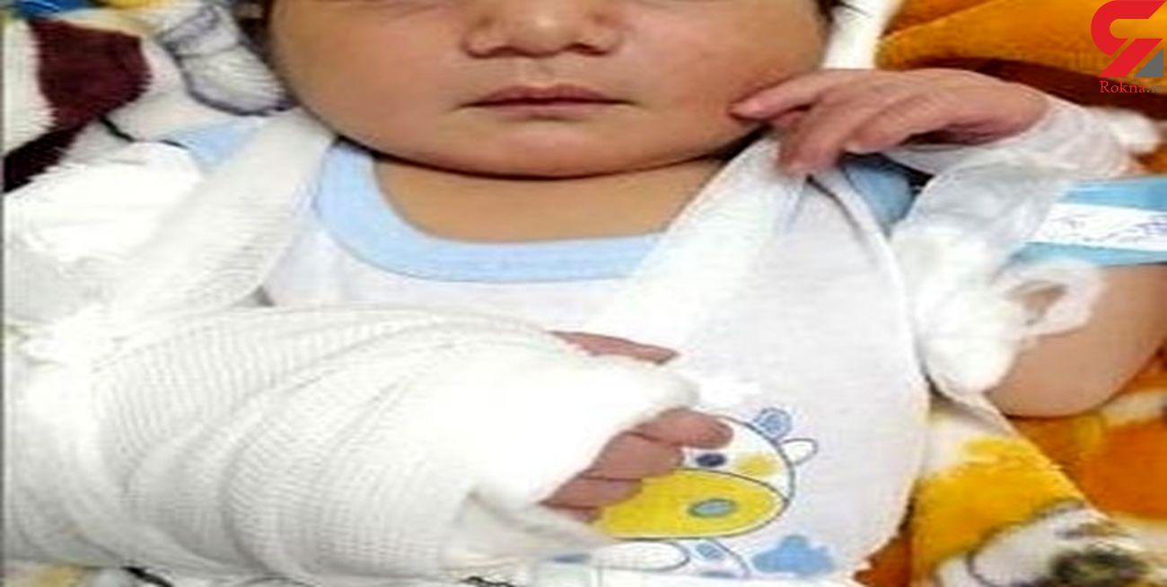 عکس نوزاد خرمشهری که با دست شکسته به دنیا آمد