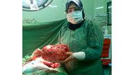 غده سه کیلویی از بدن بیمار جهرمی خارج شد