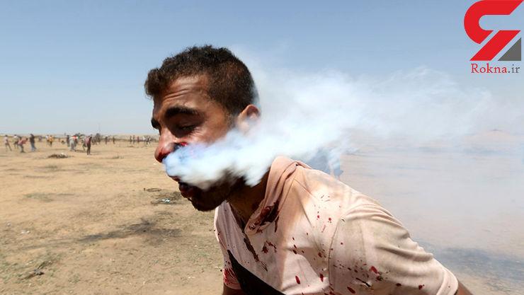 حمله وحشتناک نظامیان صهیونیست به یک فلسطینی با گاز اشکآور + تصاویر