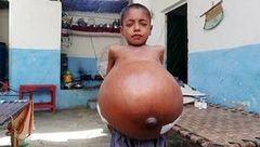 راز مخوف شکم برآمده  پسر ۹ ساله چیست؟! + عکس باورنکردنی