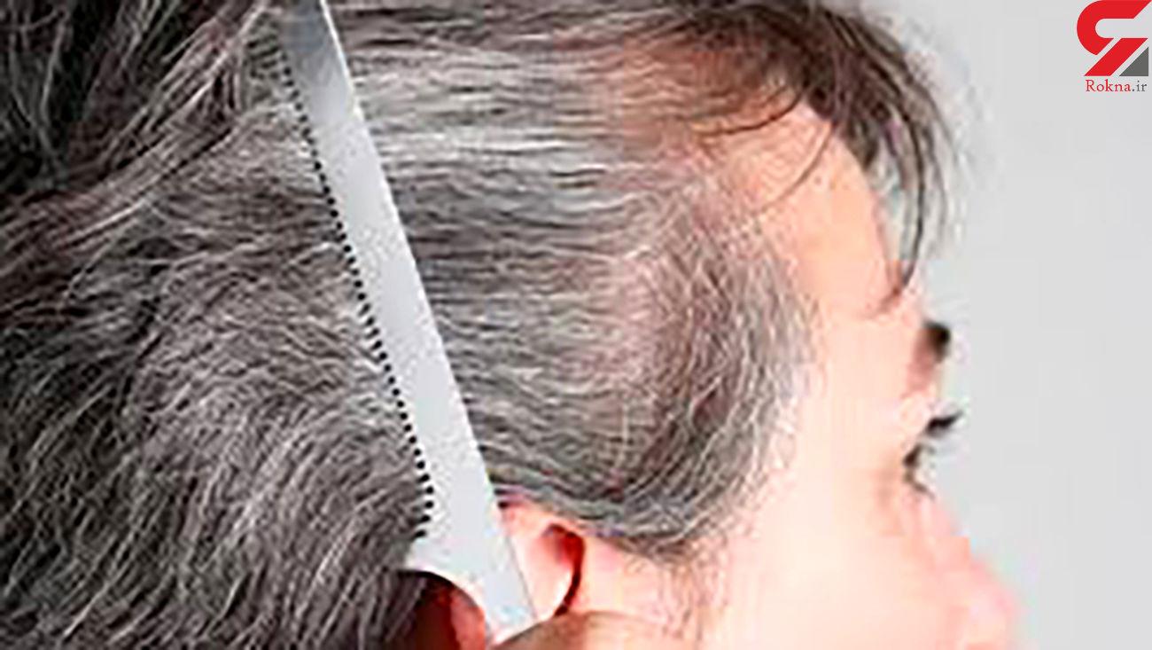 تمام عواملی که می توانند موجب سفیدی زودرس موها شوند