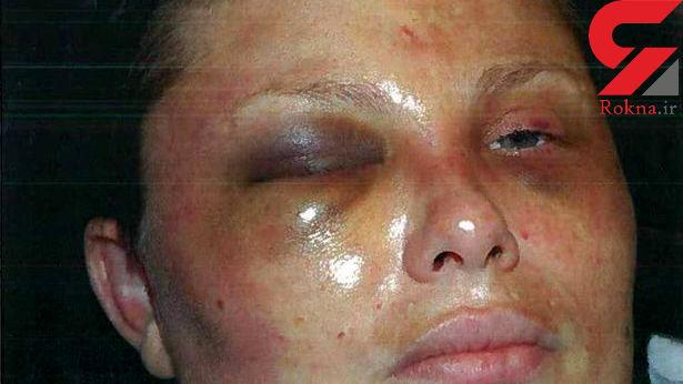 این زن با چکش کتک خورد / او مجبور شد سرپا بخوابد و چیزهای عجیبی بخورد!+ عکس