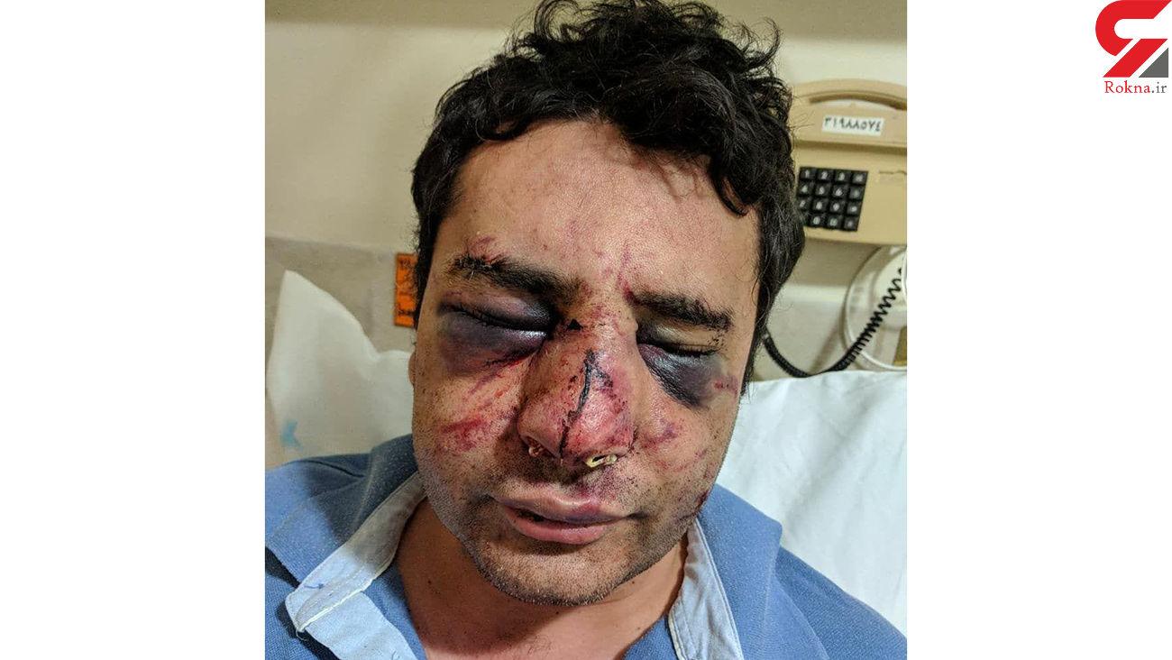 کور شدن دکتر پیرانشهری در حمله بستگان فوتی کرونایی به بیمارستان + عکس دردناک