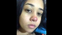 پیرسینگ گذاشتن روی بینی دختر جوان را فلج کرد+عکس