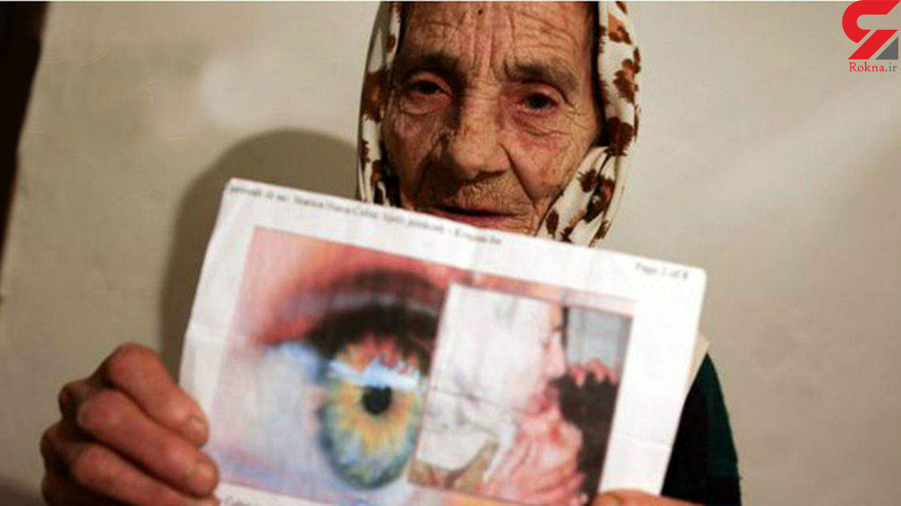 ننه حوا پیرزنی که با لیس زدن مردمک چشم بیماران را شفا می دهد+ تصاویر