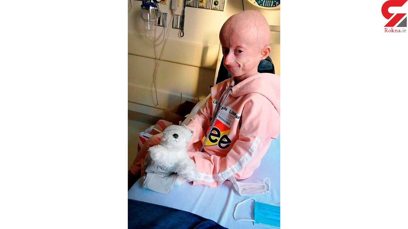 دختر 10 ساله اوکراینی بر اثر پیری زودرس درگذشت + عکس
