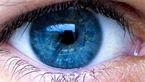 حفظ سلامت چشم با این راهکارها