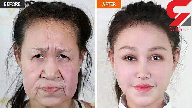 جراحی زیبایی یک پیرزن را به دختری 15 ساله تبدیل کرد + عکس قبل و بعد /چین