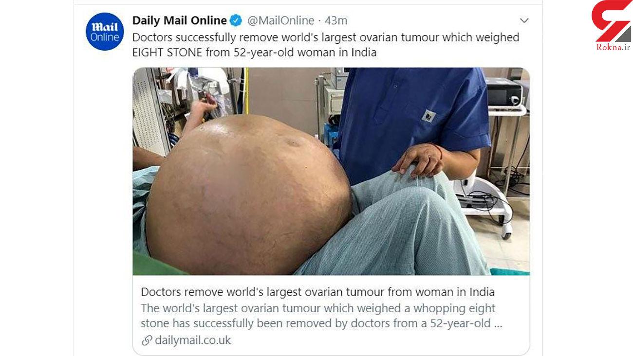 خارج کردن بزرگترین تومور تخمدان از شکم یک زن 52 ساله + عکس