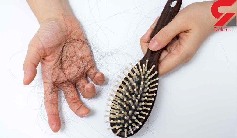 درمان ریزش مو با شیوه ای معجزه آسا
