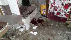 اولین حادثه وحشتناک ترقه بازی چهارشنبه سوری در بوکان / قطع پا و سوختگی شدید 4 پسر +عکس