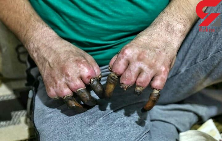 این عکس دردناک برای یک کولبر است / انگشتان او یکی پس از دیگری می افتند+ تصویر