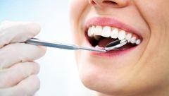 راز دندان های مرواریدی با نسخه های خانگی