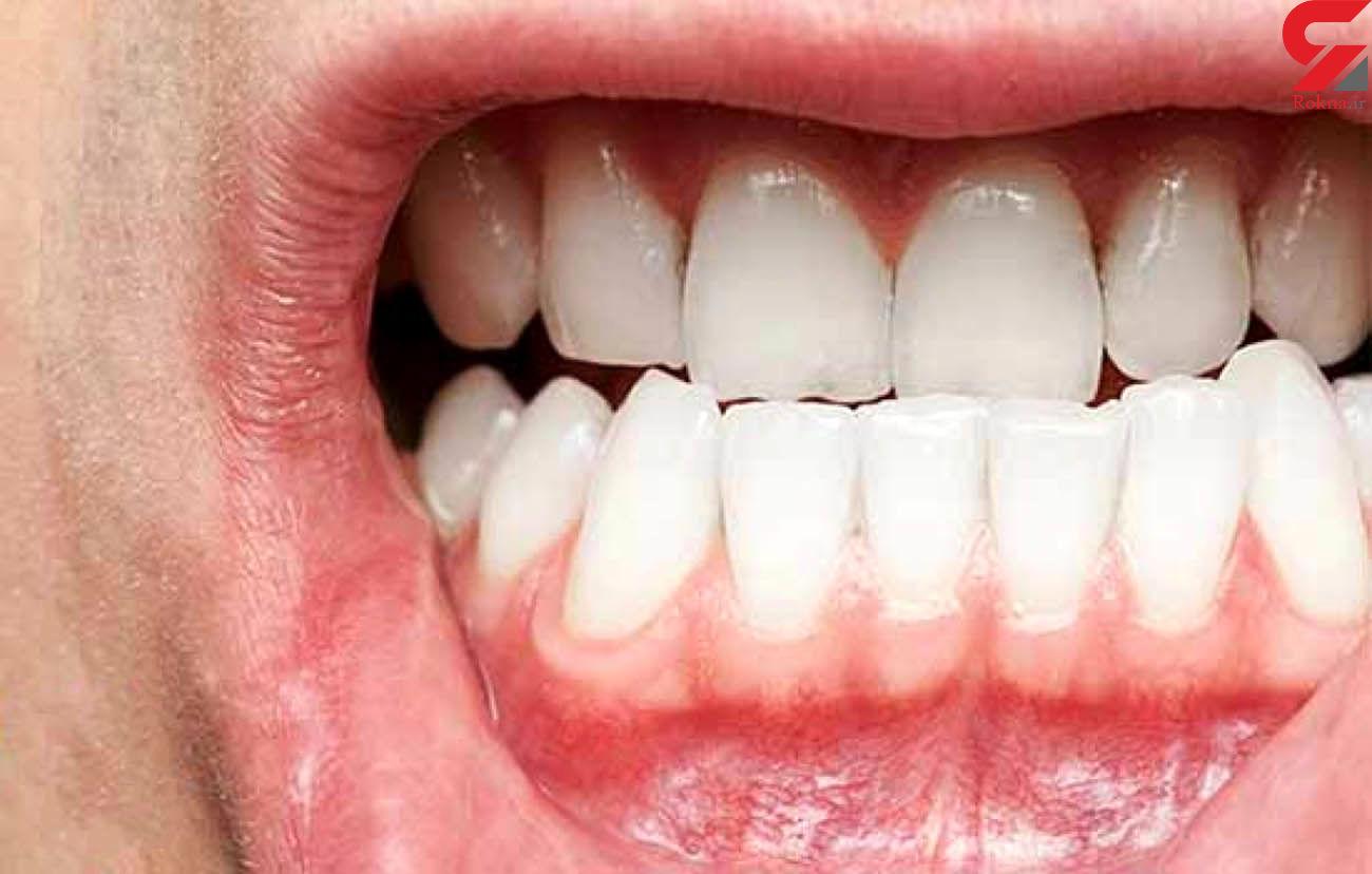 خمیردندانی برای رفع التهاب لثه