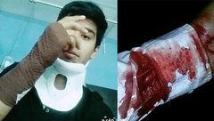 جزئیات حمله خونین به ۲ طلبه نیشابوری / متهمان هنوز دستگیر نشده اند + عکس