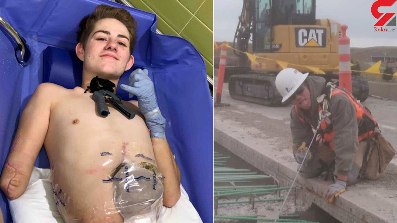 Teen crushed by forklift chooses to have half his body amputated so he can live