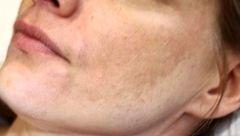 این لکه های پوستی ناشی از بیماری های جدی است