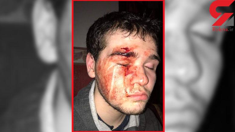 لحظه حمله شیطانی اراذل و اوباش به پسر اوتیسمی + فیلم و عکس