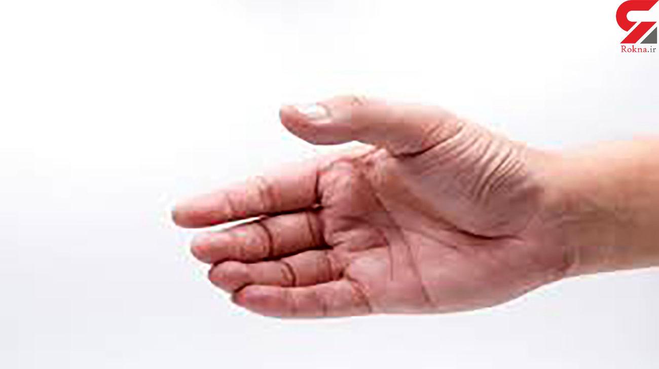 تشخیص بیماری ها از روی دست!