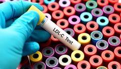 دشمنان کلسترول خون را بشناسید