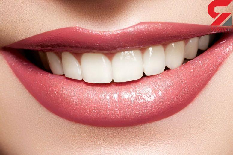 دشمن سفیدی دندان ها را بشناسید