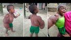 بیماری عجیب و وحشتناک ، با این دختر 2 ساله کاری کرد که همه از او فرار می کنند+ عکس
