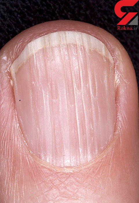 تغییر ناخن ها خبر از چه بیماری هایی می دهد؟