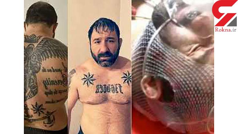 """آخرین وضعیت جسمی """"هانی کرده"""" از زبان پلیس"""