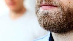 راه درمان کچلی ریش/مبارزه با این بیماری قارچی